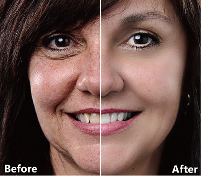 Before and after sample of smooth skin and blemish removal